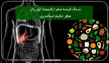 درمان سنگ کیسه صفرا در طب سنتی